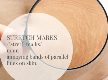 stretch marks treatment in singapore